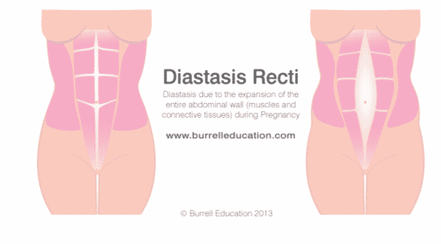Learn if you have diastasis recti and what to do about it.
