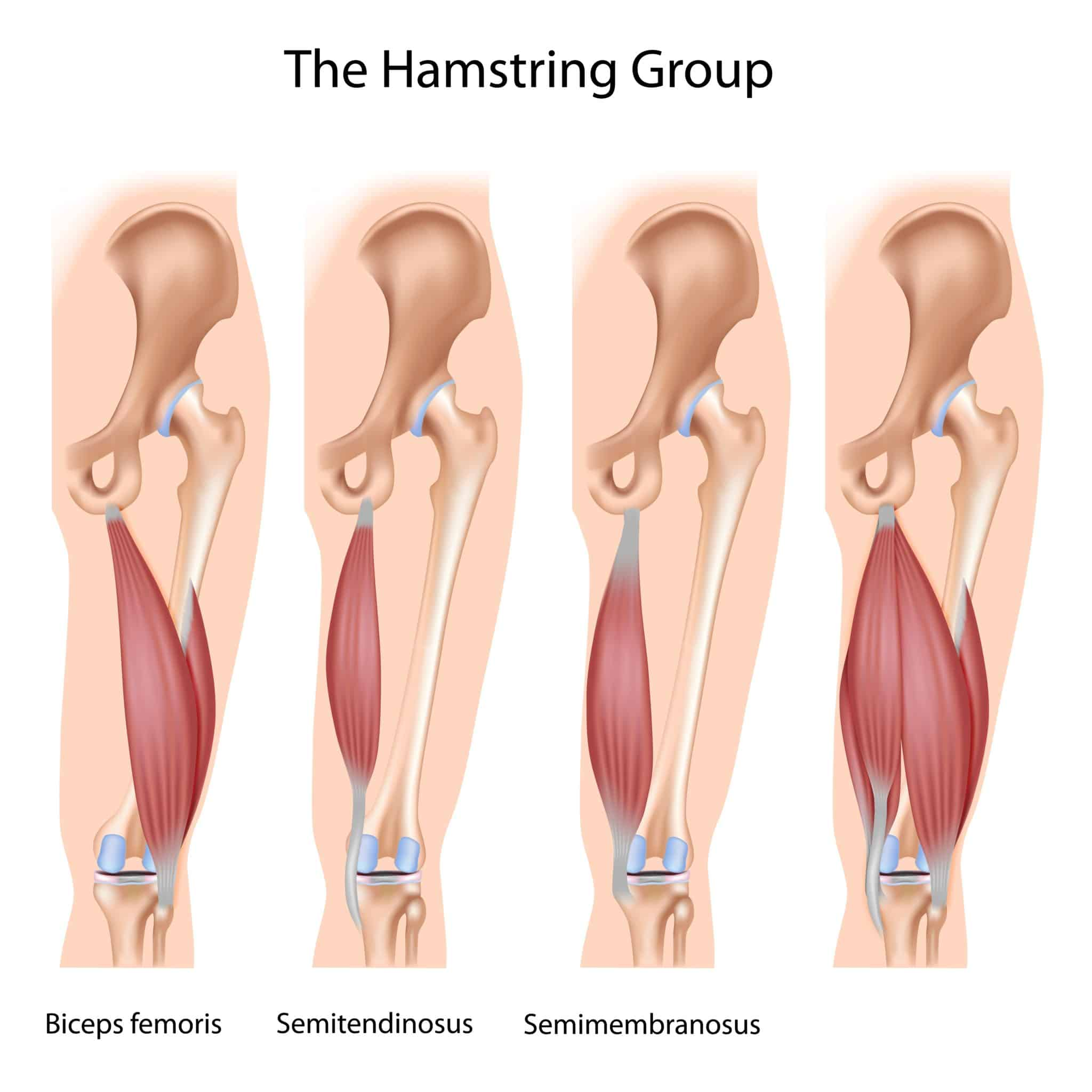 4 anatomical photos of the hamstring group, text stating the muscle group being shown. Biceps femoris, semitendinosus, and semimembranosus.